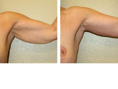 arm-liftbrachioplasty 1-3-1