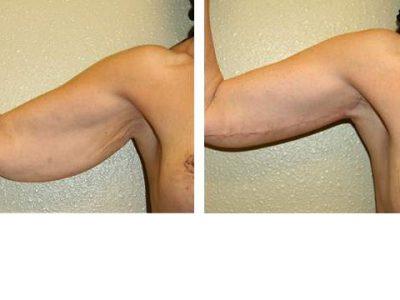 arm-liftbrachioplasty 2-3-1