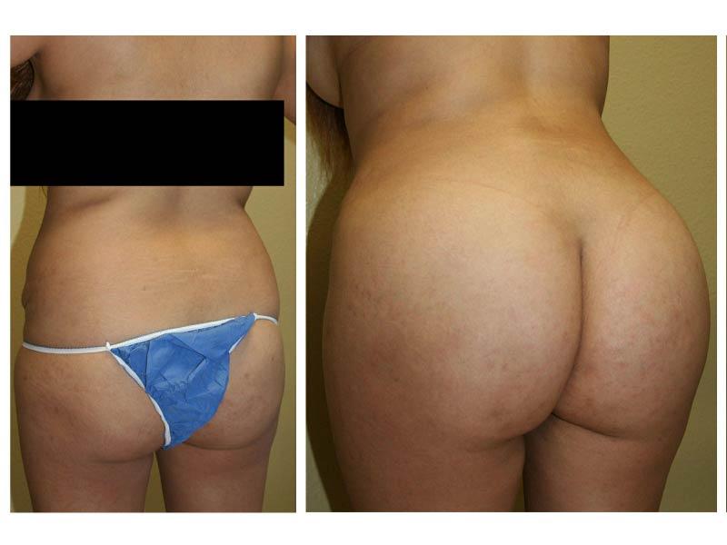 Brazil butt lift nude speaking