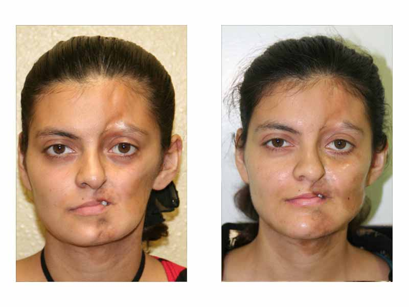 Facial cheek implants
