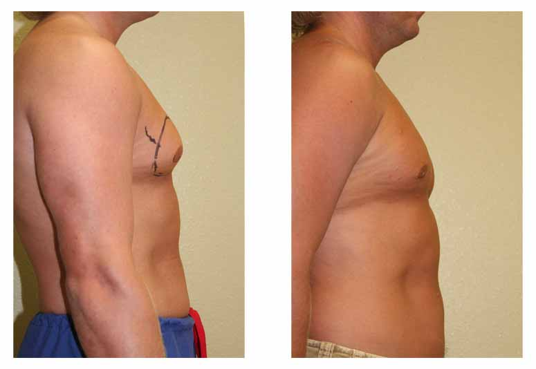 male breast reduction Gynexin Diabetes