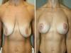 43 breast lift