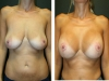 Case 36 Breast Lift a