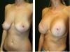 Case 36 breast lift b