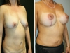 case 5 breast 3