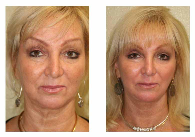 Deep chemical peel facial