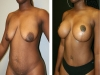 case 6 breast lift 2
