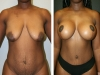 Case 6 Breast lift