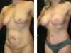Tummy 1-2