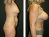 Tummy 1-3
